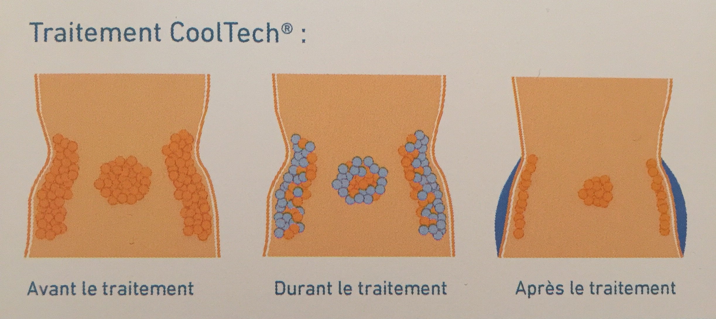 traitement-cooltech
